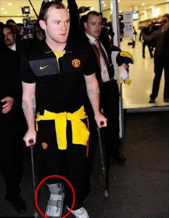 Roo emerges on crutches !